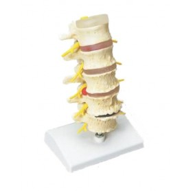 Coloana lombara-model anatomie